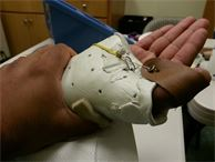 dynamic splint for thumb after fracture and tendon injury
